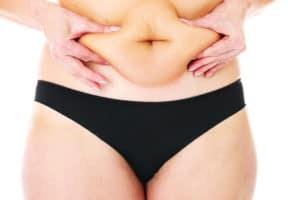 How to Deal with Belly Fat with PCOS