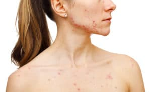woman with pcos hormonal acne on her jawline and neck